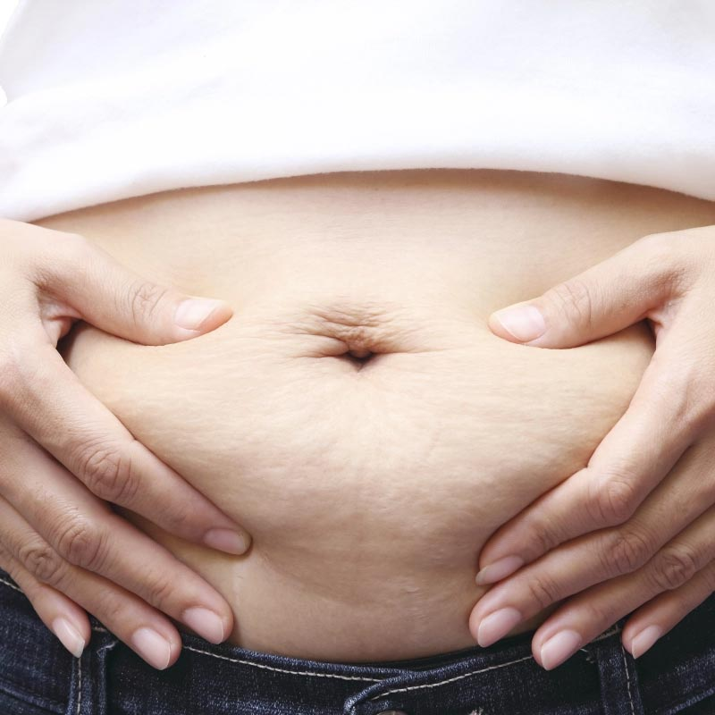 PART 2: How Do I Lose My Mummy Tummy?